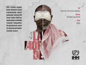 Katarakt Hastalarının Yaşam Mücadelesi Film Oldu