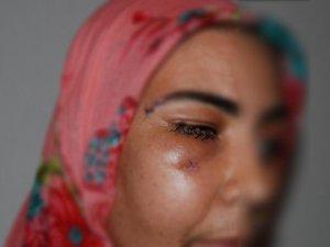 PKK'lilerin Açtığı Ateşle Yaralanan Kadın Konuştu