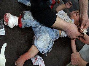 """""""Halep'teki Çocukları Kim Kurtaracak?"""""""