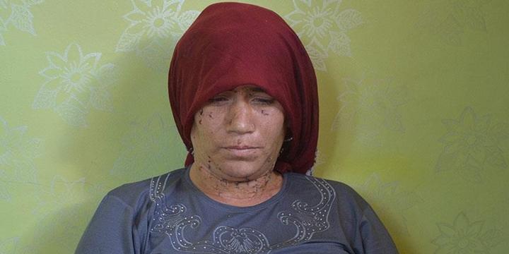 Dürümlü Katliamı Mağduru: Gözlerimi İstiyorum