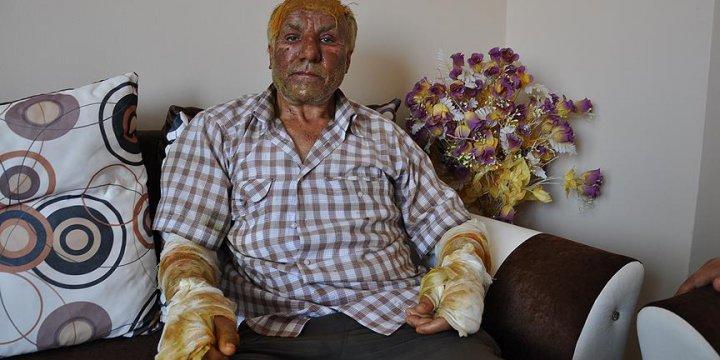 PKK'nın Yakmaya Çalıştığı Şoför: Bunların İnsanlıkla Alakası Yok