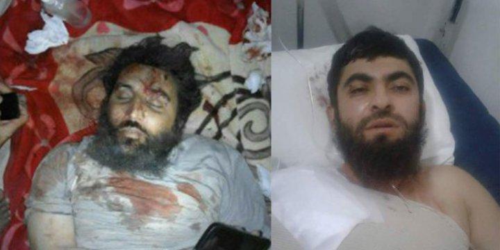 ABD Suriye'de Direniş Güçlerinin Toplantısını Vurdu