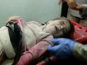 Halep'in Çocuklarına Bombalar Yağıyor