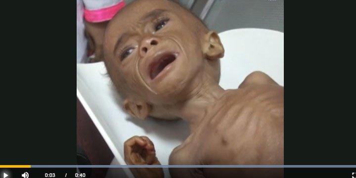 Yemen'in Yarısı Yiyecek Sıkıntısı Çekiyor