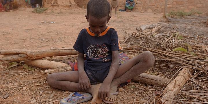"""""""Somali Yarımadası'ndaki Açlık Krizi Devasa Boyutlarda"""""""