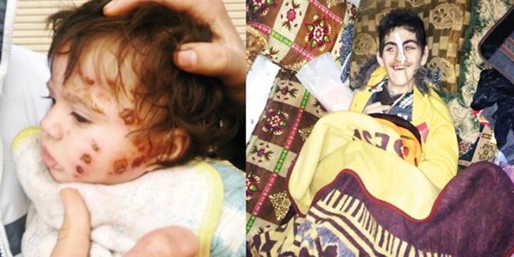 """""""Azez'de 20 Günde 14 Çocuk Hayatını Kaybetti"""""""