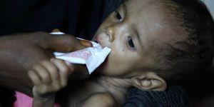 Yemen'deki Kolera Salgını: Can Kaybı Sayısı 2 Bin 194 Oldu!