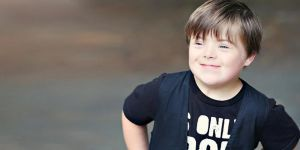 Down Sendromlu Çocukların Farkında mıyız?
