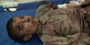 Kâbil Hükümetinden Kunduz'da Medreseye Saldırı!