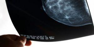 """""""Bilgisayar Hatası Sonucu Onlarca Kadın Meme Kanserinden Ölmüş Olabilir"""""""