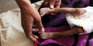 ICRC: Milyonlarca Yemenli Aç Uyuyor