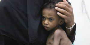BM: 113 Milyondan Fazla İnsan Açlıkla Boğuşuyor