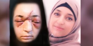 İşgal Güçleri Çocuğunu Savunan Filistinli KadınıDarbetti