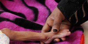 BM'den 'Yemen Tekrar Kıtlığın Eşiğine Sürüklenebilir' Uyarısı