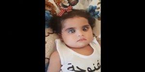 İdlib'de doğuştan glokom hastalığı olan 9 aylık bebek tedavi için yardım bekliyor