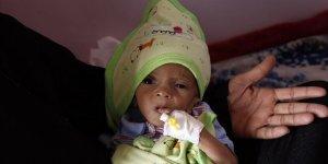 BM: Yemen'in güneyinde 98 bin çocuk ölüm riskiyle karşı karşıya
