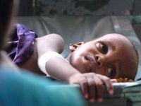 Somalide Açlık On Binleri Öldürecek!