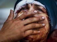 Suriyede Katliam Hastanelerde Devam Ediyor
