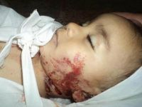 Suriye'de Dün 16'sı Çocuk 159 Kişi Katledildi (VİDEO)