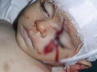 Suriye'de Bu Ay 4.511 Kardeşimiz Katledildi