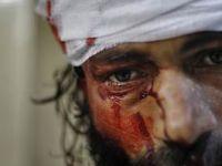 Fotoğraflarla Suriye'de Zulüm ve Direniş (FOTO)