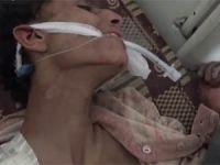 Şam'daki Filistin Mülteci Kampında Açlıktan Ölüm