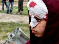 Suriye'de Dün: 11'i Çocuk 72 Şehit