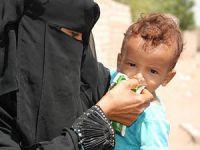 Yemen'de 10 Milyon İnsan Açlıkla Mücadele Ediyor