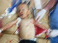 Suriyeli Doktorun Yayınladığı Dehşet Kareler! (FOTO)