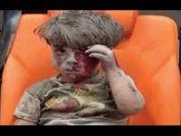 Rus Saldırısında Yaralanan Umran Bebeğin Durumu Ağır