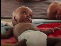 Nijerya'da Günde 2 Bin 300 Çocuk Açlıktan Ölüyor