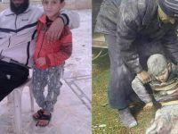 Suriye'de Bacakları Kopan Çocuğa İHH Sahip Çıktı