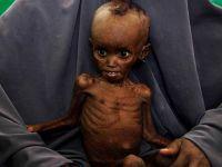 """""""Afrika'da 20 Milyon Kişi Açlık Tehlikesiyle Karşı Karşıya"""""""