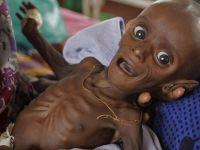 """""""Somali'de Çocuklar Adeta Birer Kemik Yığını Gibi"""""""