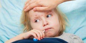 Avrupa'da Kızamık Hastalığı Yayılıyor
