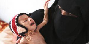Yemen'de 17 Milyon Kişi Yardıma Muhtaç