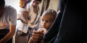 """""""Yemen'de Her 10 Dakikada 5 Yaş Altı Bir Çocuk Hayatını Kaybediyor"""""""