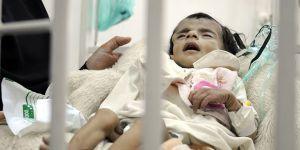 """""""Yemen'de Yarım Milyon Çocuk Ölüm Tehlikesiyle Karşı Karşıya"""""""