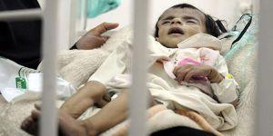 Yemen'deki Kolera Salgınında Ölü Sayısı 800'e Yaklaştı