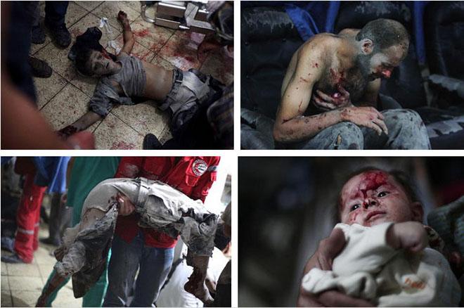 douma-massacre-suriye-syria.jpg