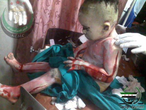 suriyeli-bebek-vahset-syria-baby.jpg