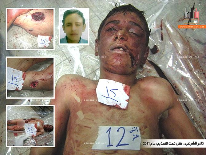 tamer-es-sarey-iskence-al-khatib-torture.jpg