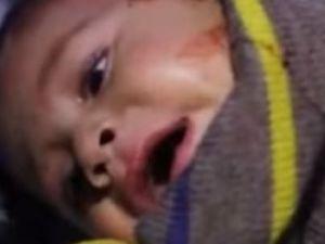 Şam Kırsalında 'Kimyasal Saldırı'